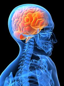 Neurological brain scan
